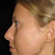 Ксения Собчак сделала пластическую операцию на нос