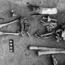 Во Франции обнаружен самый древний скелет ребенка с синдромом Дауна