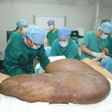В КНР мужчине удалили самую крупную в мире опухоль