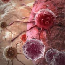 Учёные определили главные причины развития рака