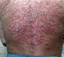 фото венерические болезни.