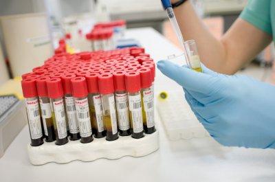 В Ульяновске разработали новую методику обнаружения рака простаты