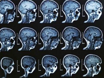 Компьютерный лабиринт в виртуальной реальности предскажет болезнь Альцгеймера