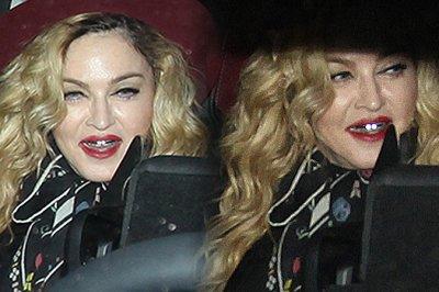 Мадонна вновь шокировала поклонников своими зубами