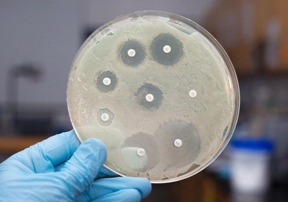 влияние антибиотиков на сперму эритромицин-ьс2