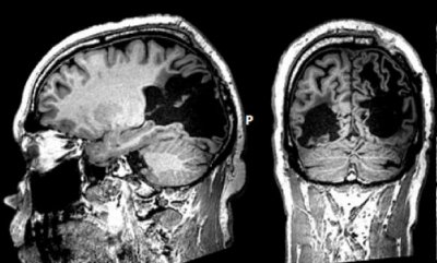 У «слепозрячего» пациента сформировали зрительно-слуховые ассоциации