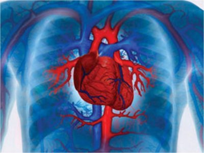 Ученые МГУ обнаружили ответственный за развитие инфаркта миокарда ген