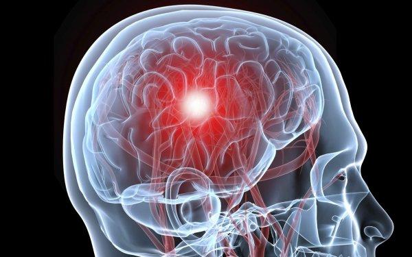 Ученые: Иммунные клетки помогут мозгу при восстановлении после инсульта