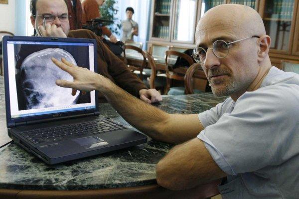 Ученые из России участвуют в подготовке к операции по пересадке головы