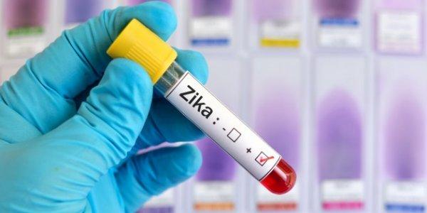 Ученые: Вирус Зика в человеческом организме мутирует быстрее, чем в другой среде
