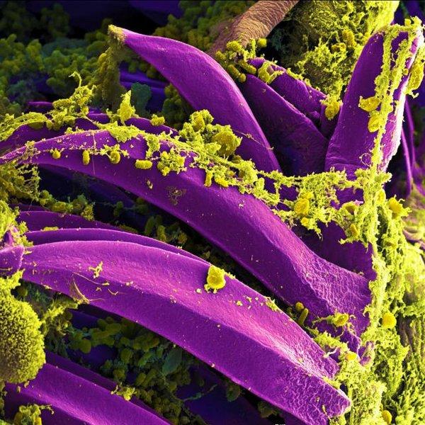 Ученые установили связь между чумой XIV века и современной эпидемией