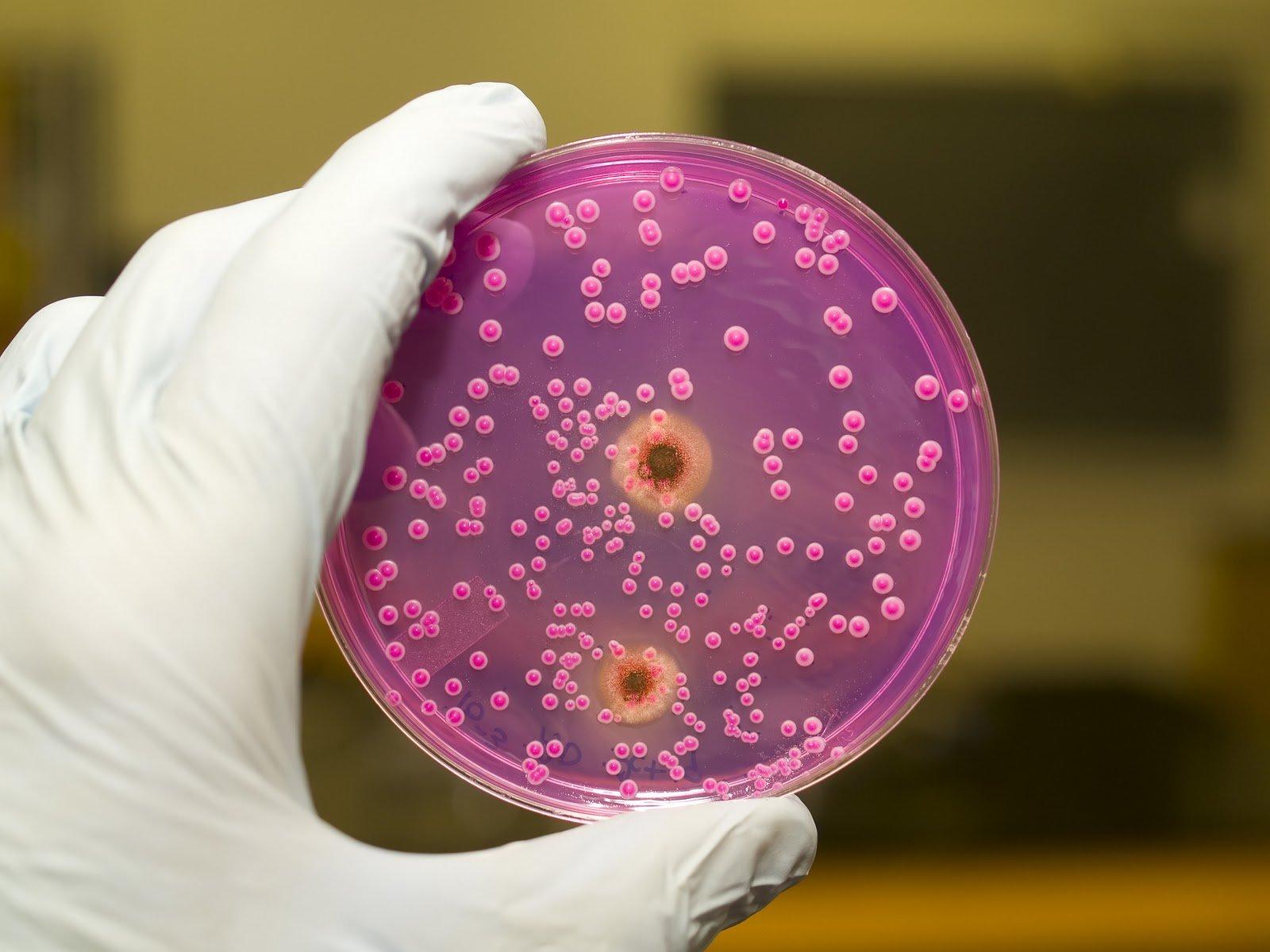 problemi-ot-antibiotikov-s-vlagalishem