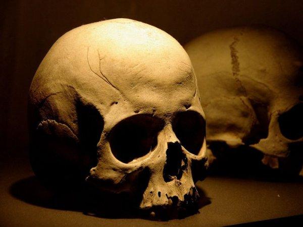 eBay запретил продажу человеческих черепов
