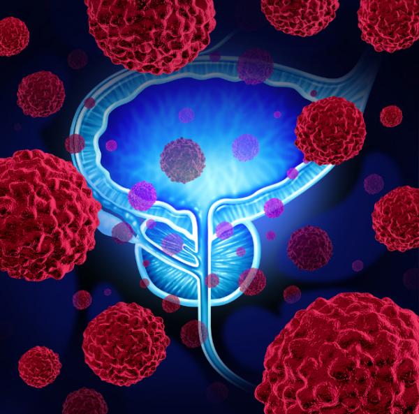 Ученые: Плохая наследственность увеличивает риск развития рака простаты