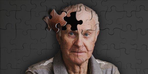 По мнению ученых, тощие люди склоны к болезни Альцгеймера
