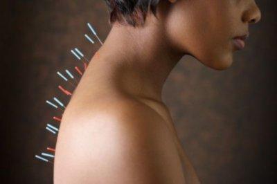 Иглоукалывание способствует сохранению памяти - ученые