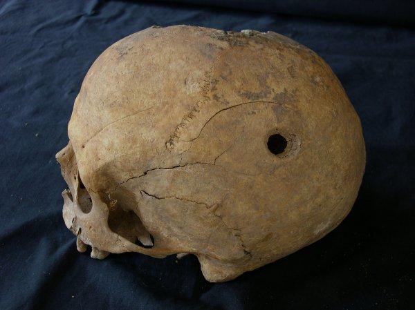 Российские и немецкие ученые разгадали тайну хирургов бронзового века