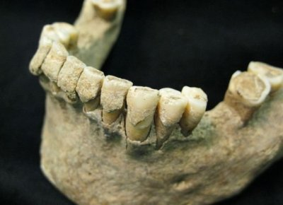 Ученые научились по зубам определять причину смерти