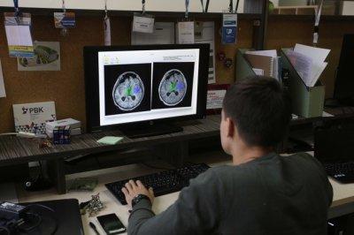 Томские ученые исследуют новое соединение для защиты мозга от инсульта