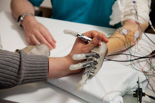 Ученые: Мозг человека пытается управлять пальцами даже спустя годы после ампутации