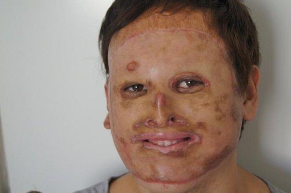 В Краснодаре провели уникальную операцию по пересадке лица