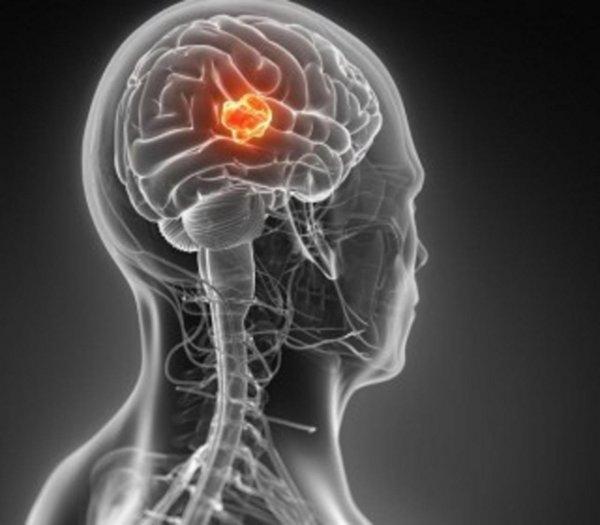 Благодаря ученым у больных с опухолью мозга появились шансы на выживание