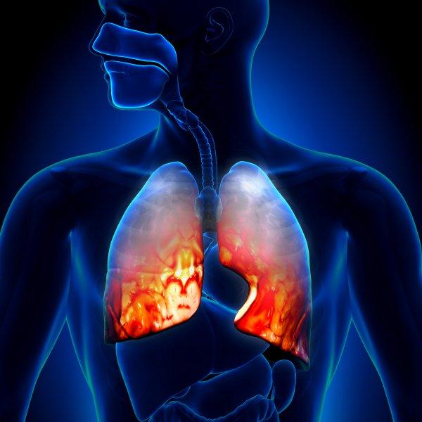 Ученые выяснили, как депрессия влияет на развитие рака легких