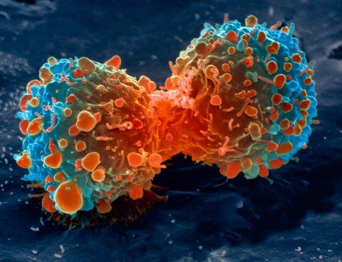 В США обнаружили новые методы лечения рака