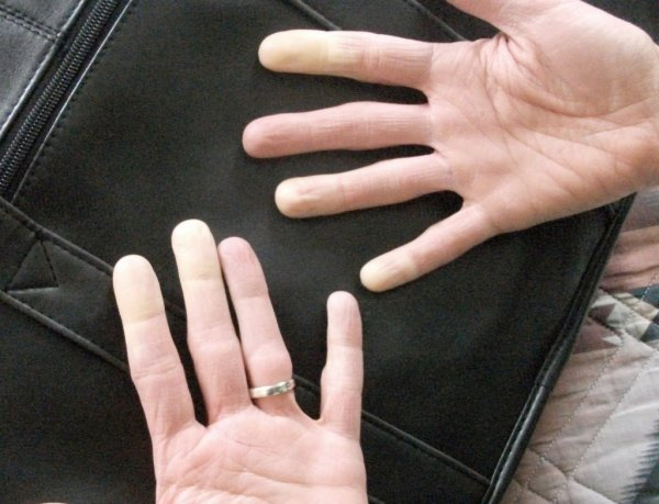 Медики могут определять наличие сердечных заболеваний по пальцам