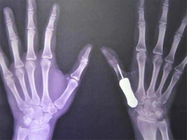 Саморассасывающийся имплант был распечатан учеными из России на 3D-принтере