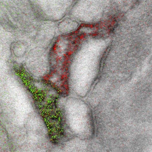 Впервые получены цветные фотографии с использованием электронного микроскопа