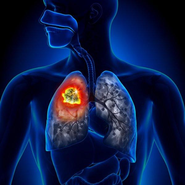 Исследователи разработали метод для диагностики рака легких у некурящих