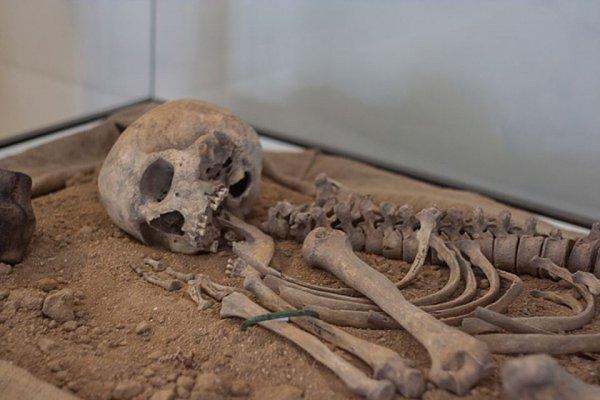 Польские ученые установили причину смерти женщины-великана