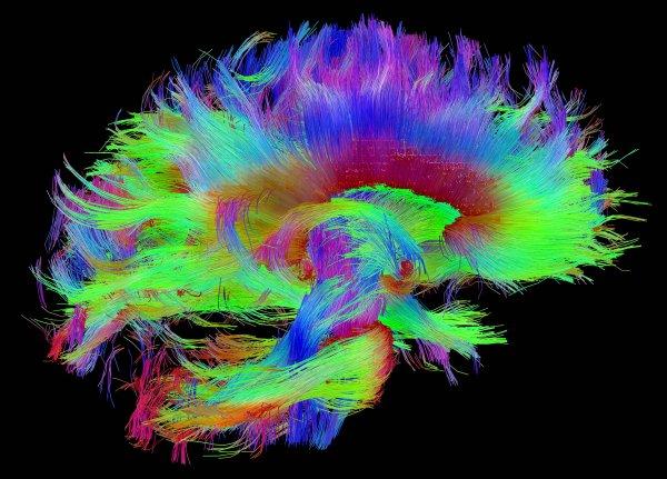 Ученые: «Отпечаток мозга» позволит идентифицировать личность