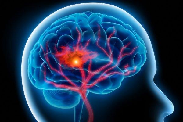 Ученые разработали методику лечения отека мозга