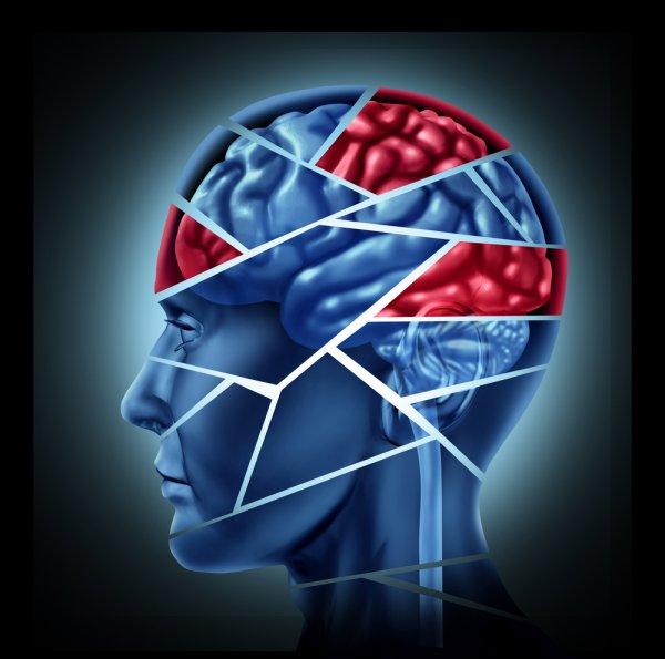 Ученые выявили причину возникновения шизофрении