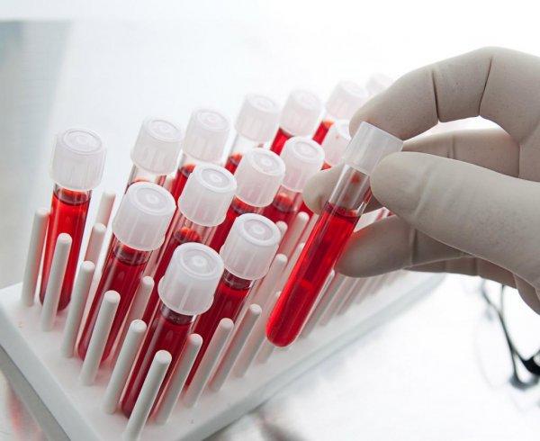 Анализ крови позволит установить риск внезапной смерти - Ученые