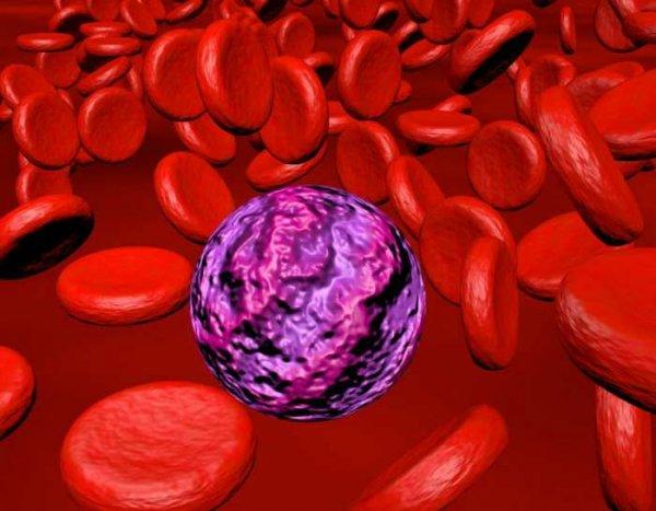 Ученые выяснили причины проявления агрессивной формы лейкемии