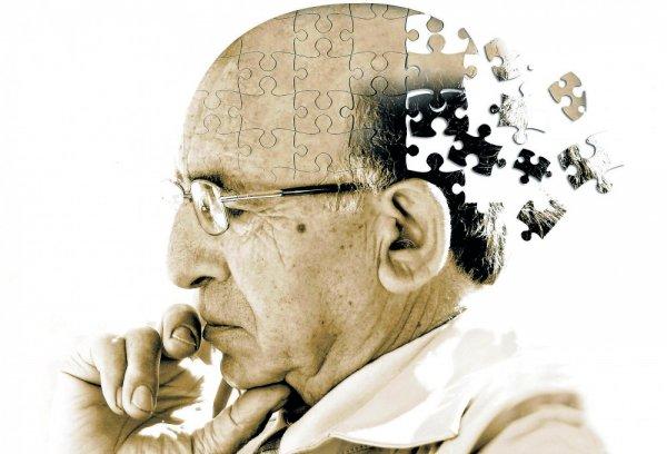 Болезнь Альцгеймера можно обнаружить за семь лет до ее проявления