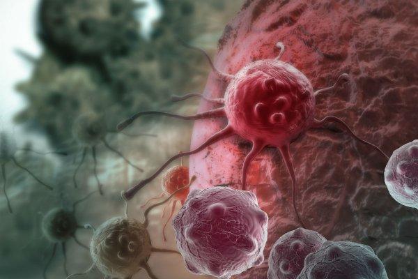 Американские ученые считают, что употребление антидепрессантов может помочь в лечении рака груди