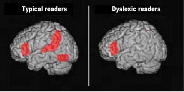 Дислексию можно преодолеть тренировками мозга – Ученые