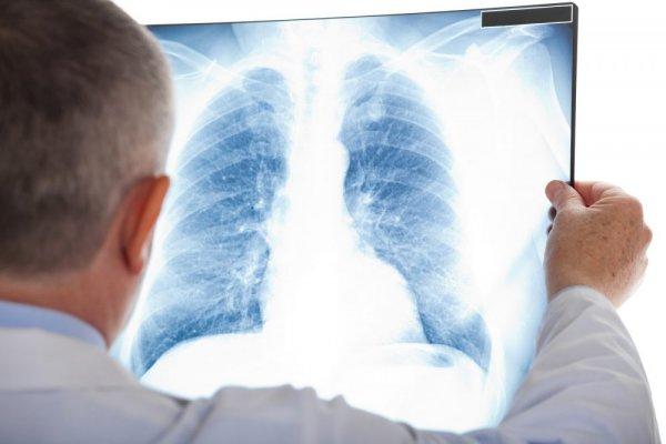 Медики заявили о важности диагностики дородовой пневмонии