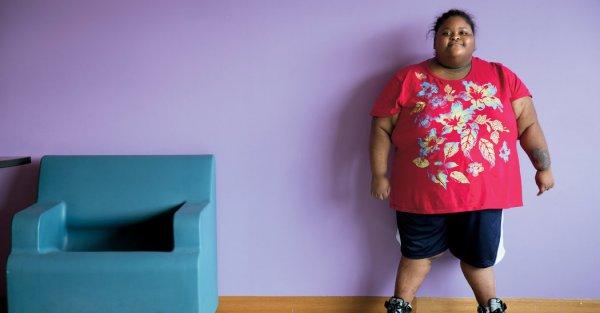 Ученые нашли способ облегчить жизнь больным с синдромом Прадера-Вилли