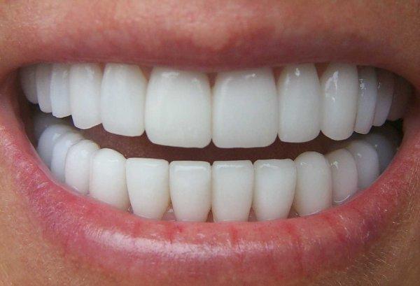 Ученые: Лекарство от Альцгеймера восстанавливает зубы