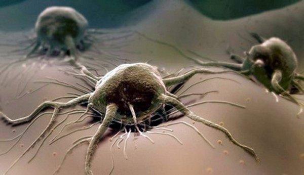 Медики придумали способ предотвращения метастазирования рака яичников