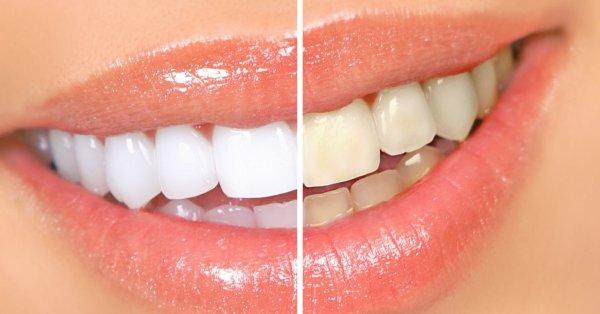 Ученые создали уникальную технологию выращивания новых зубов за два месяца
