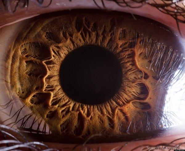 Генные инженеры излечили наследственную слепоту