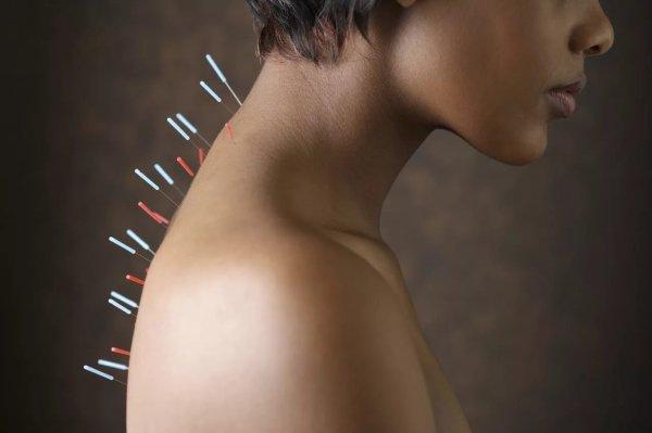 Электропунктура устраняет боль и восстанавливает ткани