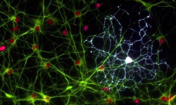 Ученые: Астроциты помогают в работе биологических часов