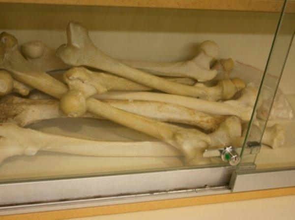 Российские специалисты изобрели уникальные имплантаты костей